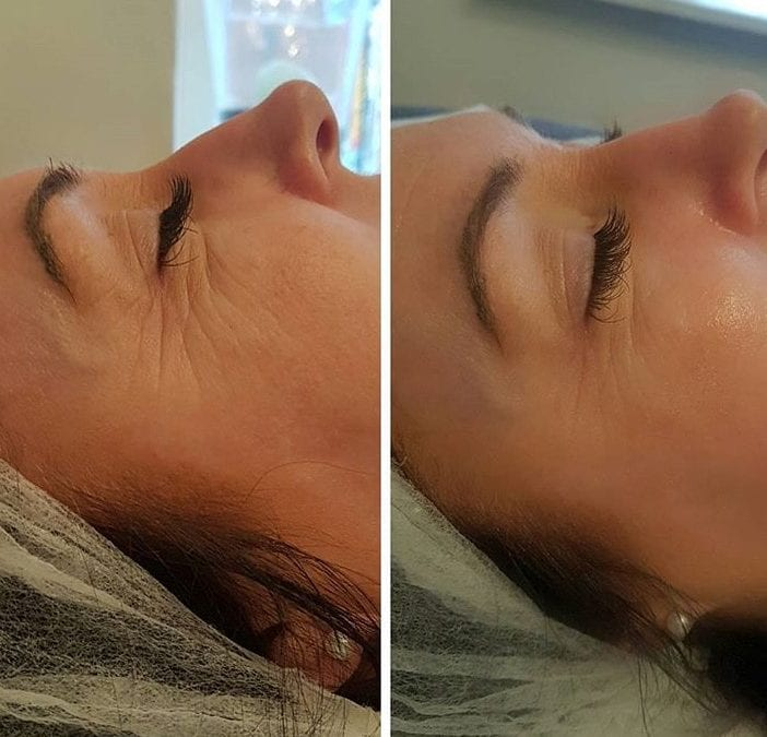 The CooLifting Treatment